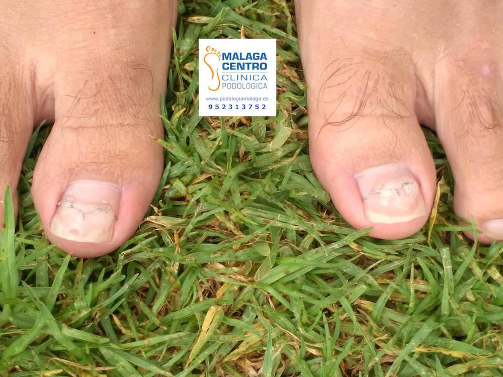 Ortonixia! La solución sin operación para tus uñas encarnadas - Blog ...